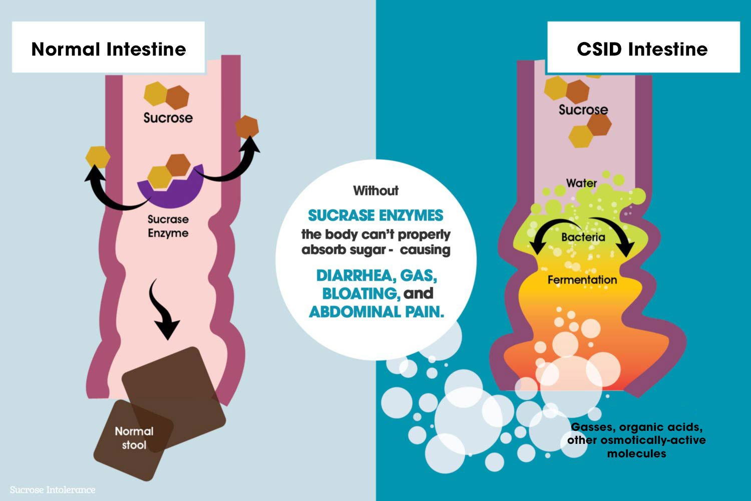 CSID Intestine vs. Normal Intestine